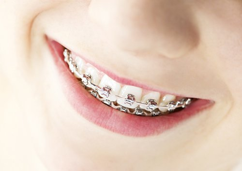 orthodontics and whole body health